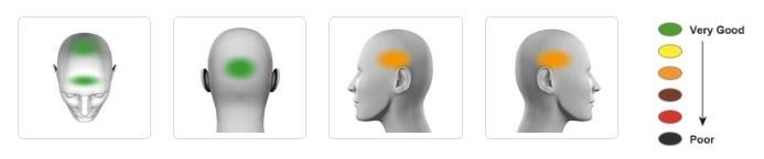 Imágenes de una cabeza vista desde diferentes ángulos indicando con colores el nivel de protección.